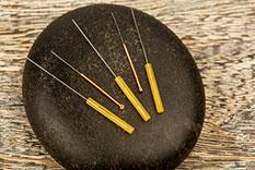 Akupunktur in Karlsruhe: Naturheilkundliche Arztpraxis Schleusener