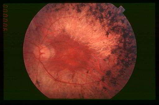 Augenhintergrund bei Retinitis pigmentosa; die Makula n der Mite ist weitgehend erhalten, die Sehzellen in der Peripherie sind weitgehend zerstört(schwarz)