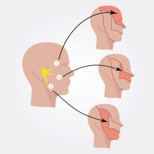 Die 3 Äste des Nervus trigeminus mit den Ausbreitungsgebieten der entsprechenden Trigeminusneuralgie.
