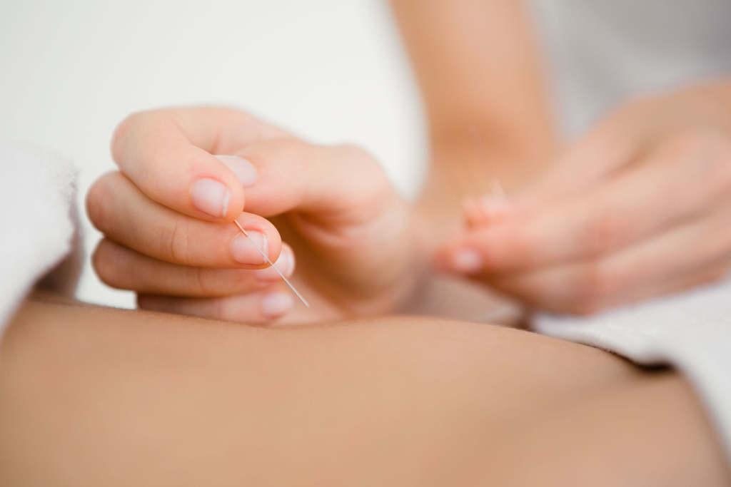 Akupunktur im Rückenbereich, z.B. bei Rückenschmerzen und Bandscheibenvorfall.