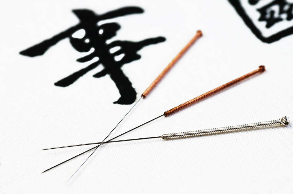 Akupunktur in Karlsruhe als Schmerztherapie, bei Makuladegeneration und bei chronischen Erkrankungen.