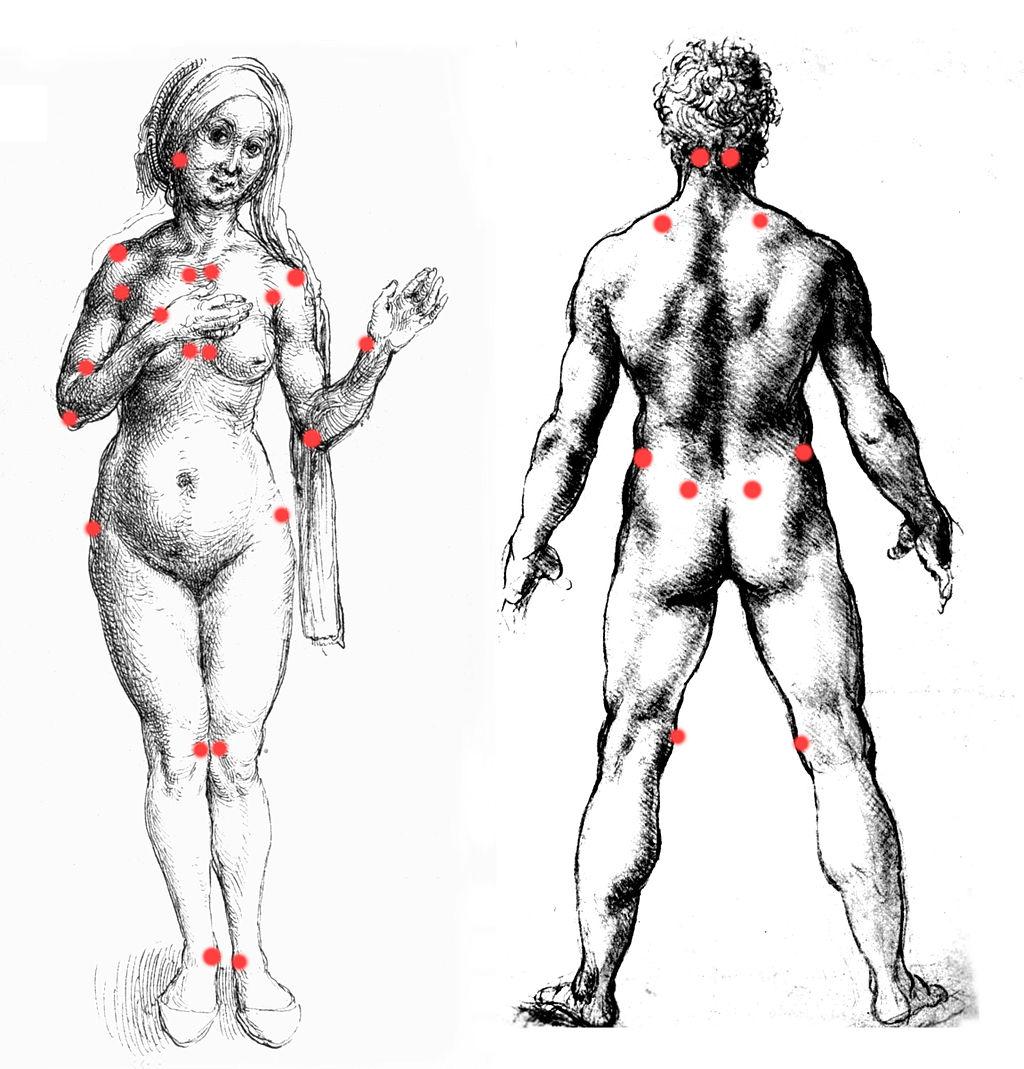 Fibromyalgie - die ungefähre Lage der Tenderpoints. Bildquelle: von Richard Huber