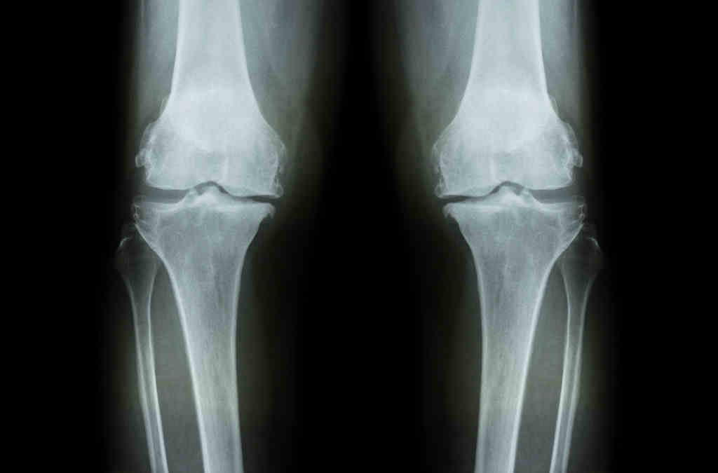 Röntgenbild beider Knie von vorne. Der Gelenkspalt, und damit der Knorpel, ist auf der Innenseite der Kniegelenke deutlich schmäler. Ausserdem sieht man Knochenanlagerungen. Typische Zeichen für eine Gonarthrose.
